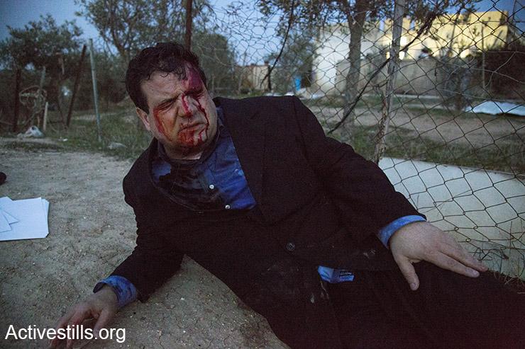 """""""הוא לא משם"""". איימן עודה, פצוע מירי המשטרה באום אל חיראן (קרן מנור/אקטיבסטילס)"""