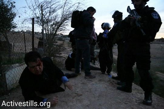 """ח""""כ עודה פצוע באום אל חיראן לפנות בוקר (צילום: קרן מנור, אקטיבסטילס)"""