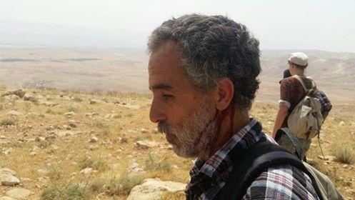 פעיל תעאיוש שנפצע ממתקפת המתנחלים באזור מאחז הבלדים (צילום: תעאיוש)