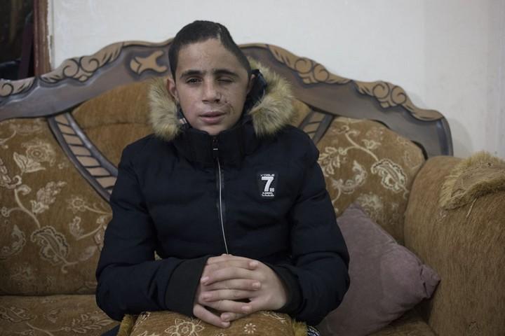 מוחמד תמימי בן ה-15 שנפצע כשבועיים לפני כן בראשו מירי של הצבא הגיע גם הוא לחזק. נבי סאלח, 5 בינואר 2018 (אורן זיו / אקטיבסטילס)