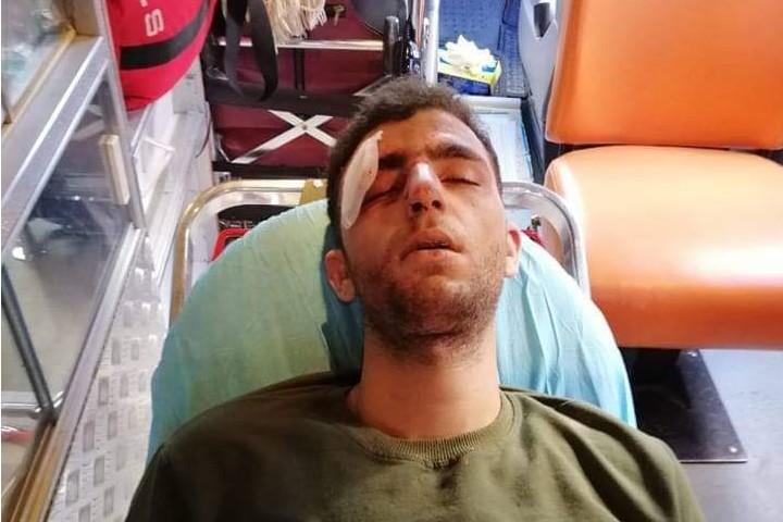 פצוע מזריקות אבנים, עסירה אלקיבלייה (צילום: הסהר האדום)
