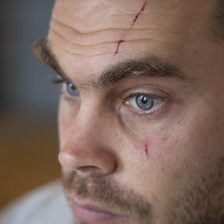 חתכים בפניו של יונתן פולק שהותקף בתל אביב על ידי שני גברים אלמונים. פולק הוא פעיל מוכר נגד הכיבוש (היידי מוטולה / אקטיבסטילס)