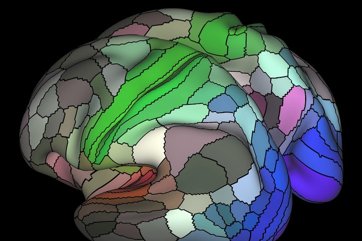 """המחקר בדק איזה אזורים במוח """"נדלקו"""" כאשר הוצג לנחקרים ישראלים וערבים הסבל של הצד השני. (צילום: NIH CC BY-NC 2.0)"""