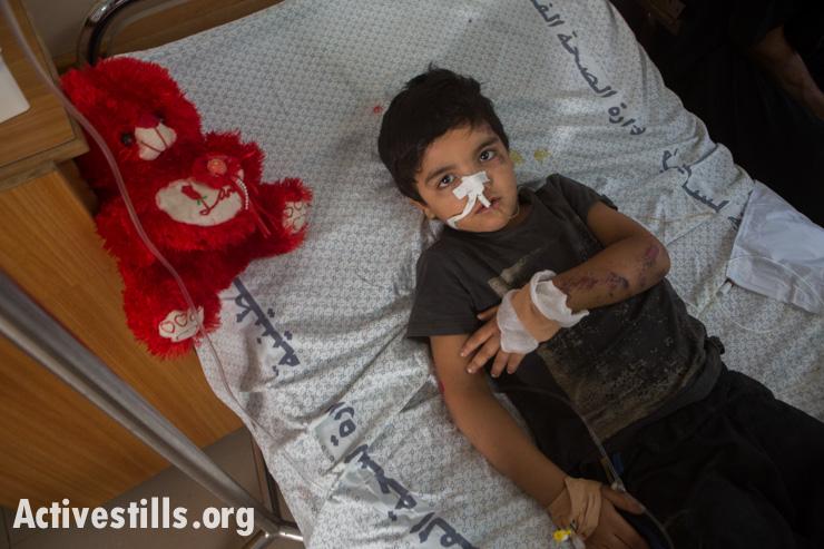 חאמדי אבדון, 4, שוכב בבית החולים אל-שיפא לאחר שנפצע בהתקפה ישראלית יחד עם עוד ארבע קרובי משפחה, עזה, ה-14 ליולי, 2014. אן פאק/אקטיבסטילס