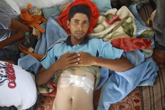 סלאח סלאמין ובן הדוד שלו, שניהם בני 24, נפצעו מרסיסים במהלך תקיפה ב-3 באוגוסט. הם שוחררו מבית החולים הכוויתי באותו היום מאחר ולא נותרו בו מיטות פנויות (צילום: סאמר בדאווי)