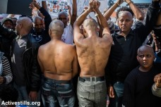מבקשי מקלט בישראל מציגים צלקות שנגרמו להם על ידי מבריחים במחנות העינויים בסיני (יותם רונן/אקטיבסטילס)