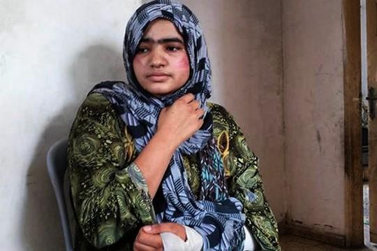 נעמה אבו ג'ראד, בת 21, שנפצעה במהלך התקיפה (עאוני פרחאת)