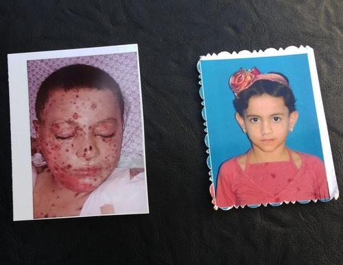 שני הילדים שניצלו רהף ות'אאר צילום: עאוני פרחאת