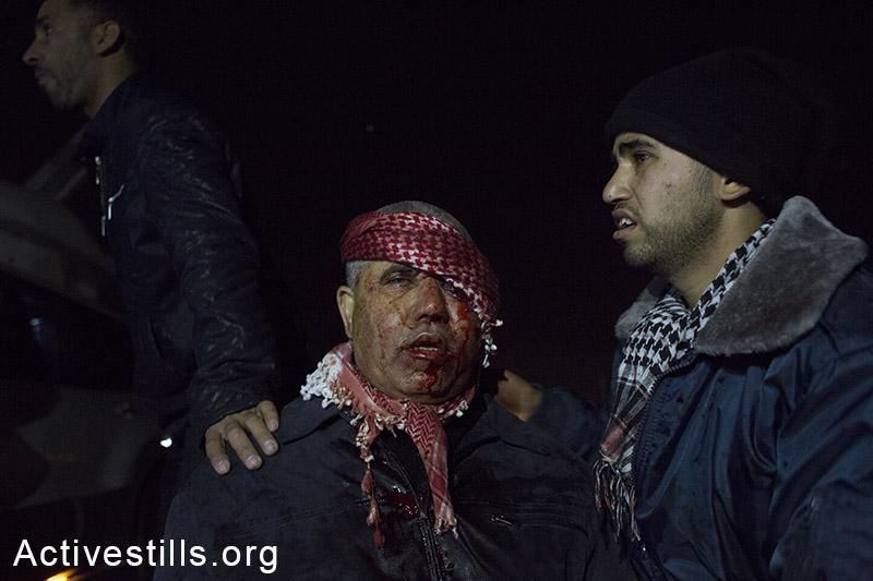 משתתף בהלווית סמי אל-ג׳עאר נעזר בקרוב לאחר שנורה בכדור גומי בעינו, רהט, ישראל, 18 לינואר, 2015. רכב משטרה שנכנס לתוך מסע ההלוויה של אל-ג׳אר, נקלע לעימות והחל לירות כמויות גדולות של תחמושת חיה וגז מדמיע. במהלך האירוע נהרג אדם נוסף, סמי אל זיאדנה, בן 42, ונפצעו מעל 40. אקטיבסטילס