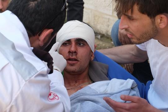מפגין פלסטיני נפגע בראשו מירי חי במהלך ההפגנה בנבי סלאח. 24 באפריל 2015. (מיקי קרצמן/אקטיבסטילס)