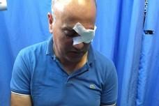 נידאל שתייה, שנורה על ידי חיילים ונפצע בעינו, בבית החולים (צילום: אחמד טלעת חסן)