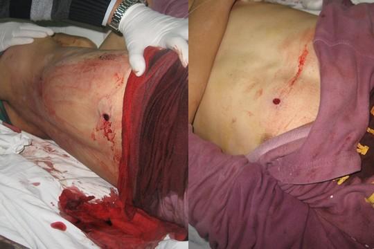 פצעי כניסה ויציאה בגופו של מוחמד קאדוס. אין סיכוי שמדובר בירי גומי