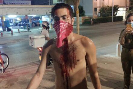 """המפגינים הם שהבריחו את התוקפים, לא המשטרה. שי סקלר אחרי שהותקף בהפגנה בתל אביב (צילום: בן נצר, גל""""צ)"""