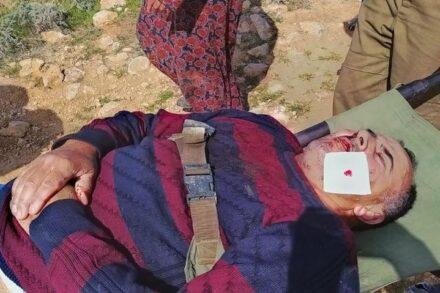 """""""פתאום הגיע מתנחל"""". סעיד אבו עליאן מובל לטיפול רפואי (צילום: גיא בוטביה)"""