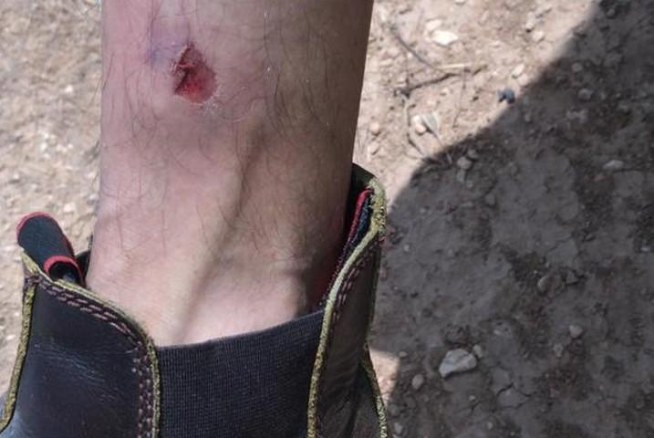 רגלו הפצועה של קאסם חמאמדה, תושב אל מפגרה, אחרי התקפת המתנחלים, ב-24 באפריל 2021 (צילום: באסל אל-עדרה)