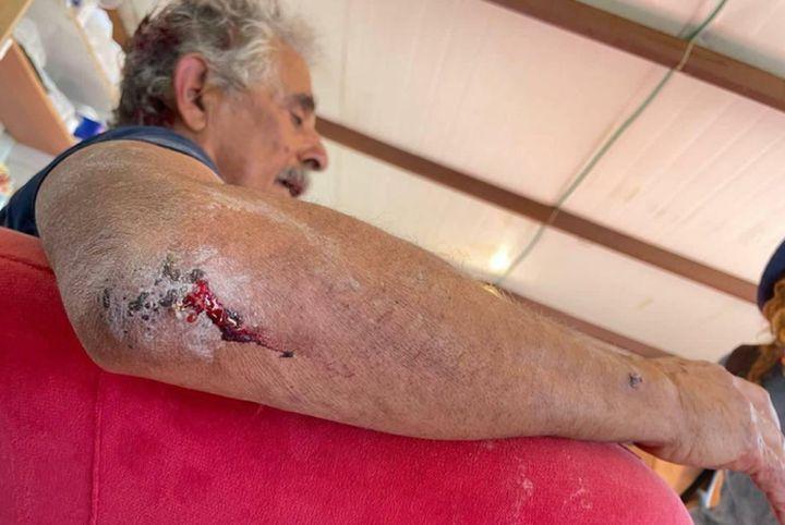 """""""המתנחלים חושבים שמותר להם לתקוף"""". בוב, מתנדב יליד אמריקה, לאחר שהותקף על ידי מתנחלים (צילום: באסל אל עדרה)"""