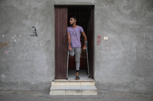 """בי""""ח שחרר נער פצוע במצב קשה, ובעזה נאלצו לכרות את רגלו"""